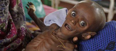 सोमालियाकाे भोकमरी र यसको वास्तविक कारण